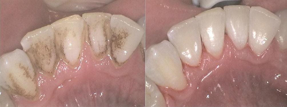 Hygienist Stainremoval