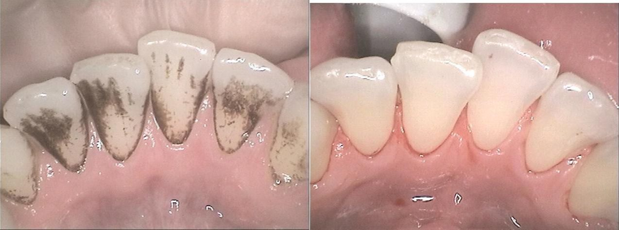 Hygienist-stainremoval2