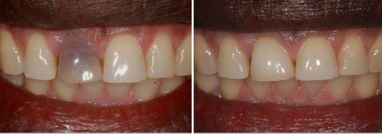 zoom teeth whitening london