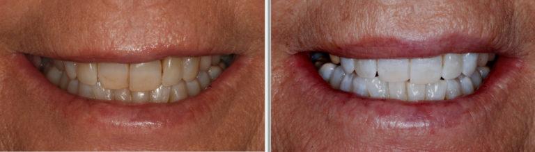 enlighten teeth whitening battesea