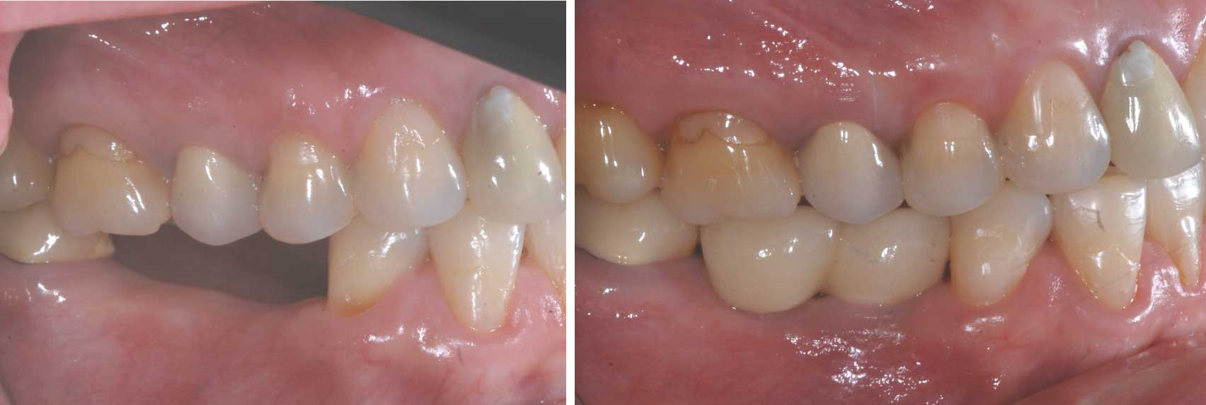 Chatfield dental tooth implant image 2