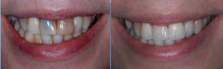 dental crown - Case Studies