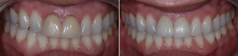 dental crown battersea