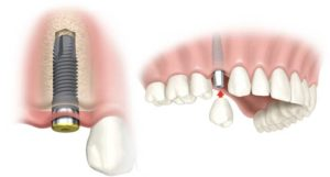 Dental Implants Battersea