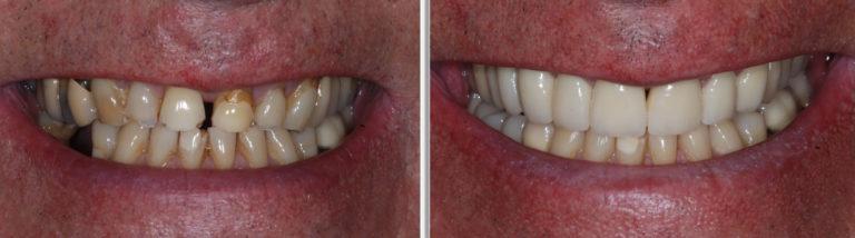 dental veneers chatfield dental centre