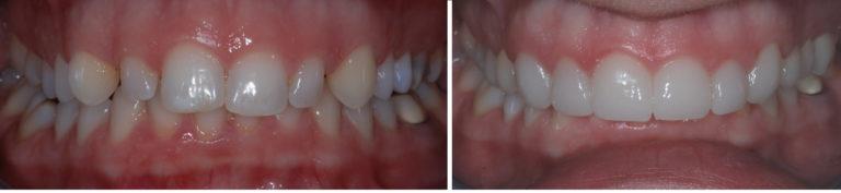 dental Veneers battersea