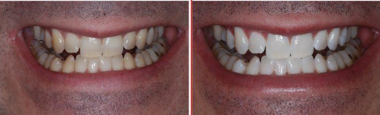 Teeth whitening battersea