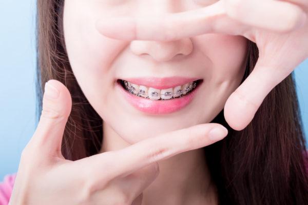fixed braces battersea