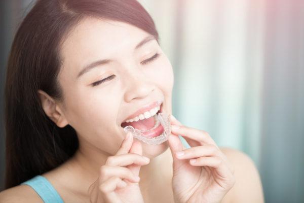 removable braces battersea