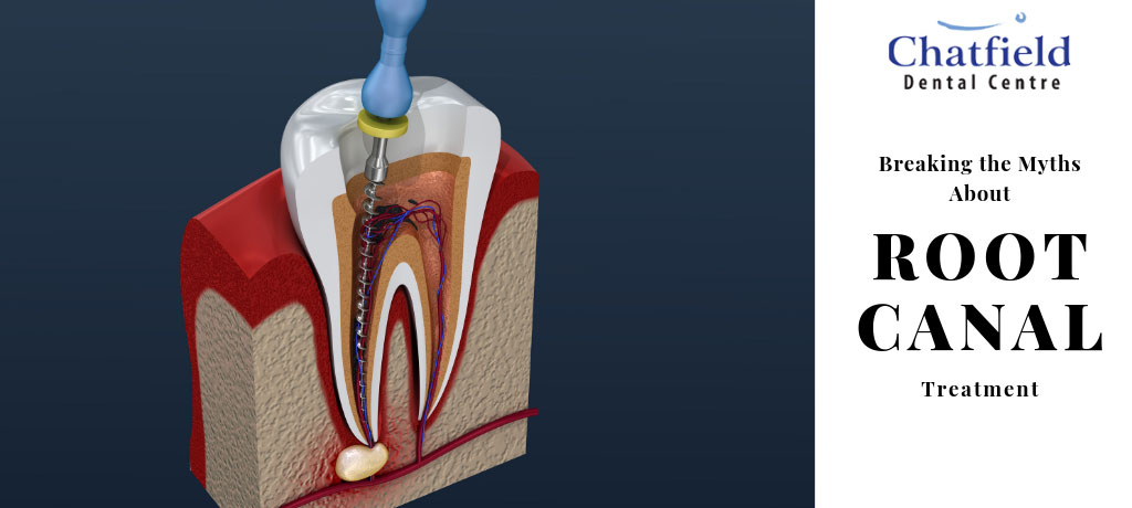 Breaking the Myths About Root Canal Treatment